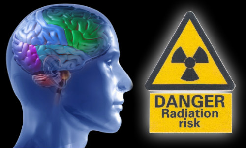 mobile phone radiation essay Physicists agree that what i wrote in this eskeptic article and the skeptic essay are the the links between mobile phone radiation and the cancer glioma is not.
