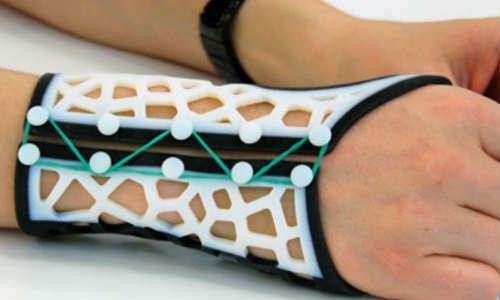 जोड़ों के दर्द से राहत पहुंचाएगी ये 3डी प्रिंटेड डिजाइन