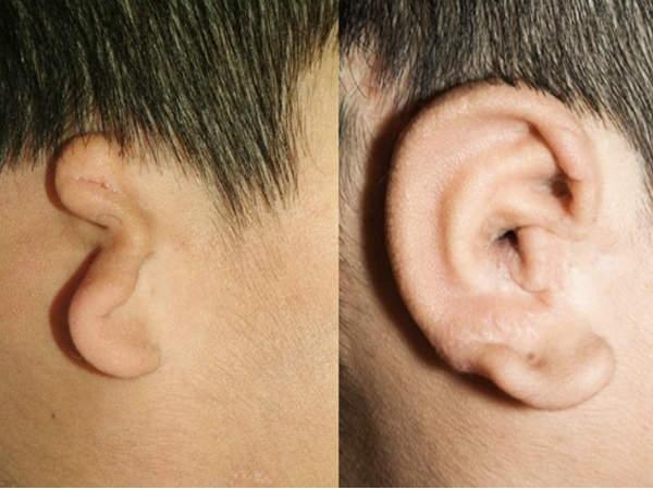 मशीन से बनाए गए हैं ये कान