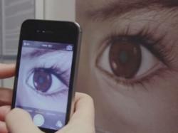 स्मार्टफोन के कैमरे से आंख के कैंसर की पहचान